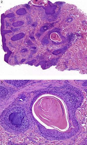 HE. Infiltrado linfocitario dérmico con depósito de mucina perifolicular y alrededor de las glándulas sebáceas.