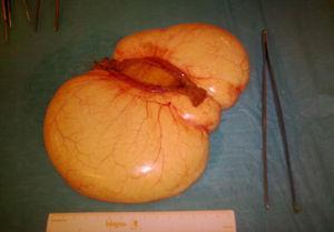 Caso número 3, de presentación aguda por vólvulo de raíz de mesenterio. Morfologia sésil. Se aprecia el segmento de asa resecada (abierta longitudinalmente). QM.