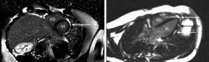 Se aprecia en las caras inferior y lateral (flechas) realce tardío con gadolinio y un patrón parcheado correspondiente a las áreas de inflamación miocárdica.