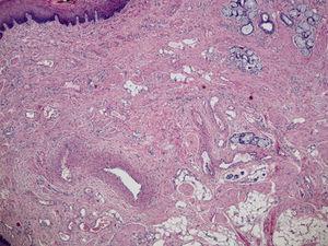 Histopatología. Se observan numerosas estructuras vasculares de pequeño y mediano calibre, de aspecto malformativo, tortuosas, muchas de ellas con válvulas, revestidas por endotelio plano sin atipia.