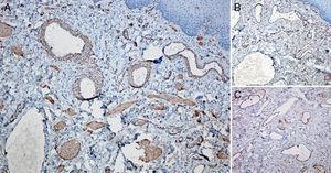 Inmunohistoquímica. A) Actina muscular específica positiva en células musculares de las paredes de las estructuras vasculares malformativas. B) CD31 positivo en células endoteliales vasculares. C) D2-40 positivos en células endoteliales linfáticas.