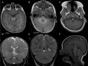 RS parcial aislada. A-C) Axial SPGR T1 de rostral a caudal: mesencéfalo (A), protuberancia (B) y unión bulbo-medular (C). Nótese la presencia de la porción anterior del vermis (A), la fusión caudal del vermis posterior (B) y la fusión rostral y posterior de los hemisferios cerebelosos con disposición horizontal de las folias (C). D-E). Coronal FSE T2. Ausencia de la porción inferior del vermis posterior; obsérvense la língula en el vermis anterior (D) y la fusión de los hemisferios cerebelosos con continuidad de las folias y sustancia blanca cruzando la línea media F) Sagital medio FLAIR T1. Nódulo presente.