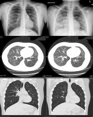 Arriba: radiografías de tórax en inspiración y espiración, mostrando el menor tamaño del pulmón izquierdo, que atrapa aire en espiración. Medio y abajo: TAC torácica que muestra la asimetría en el volumen de ambos pulmones, siendo menor el del izquierdo, y discreta disminución del calibre de las estructuras vasculares, que es más evidente en el LII.