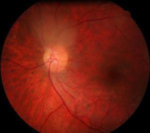 Funduscopia de polo posterior del ojo derecho, se observa masa traslúcida blanquecina junto a nervio óptico en la salida de los vasos temporales superiores.