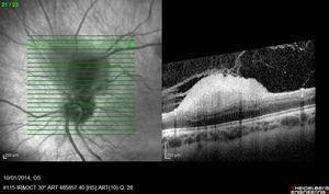 Imagen de tomografía de coherencia óptica del astrocitoma benigno del ojo derecho, se observa que la masa nace de las capas internas de la retina y protruye hacia el interior del globo ocular, sin infiltrar el epitelio pigmentario de la retina ni su membrana basal.