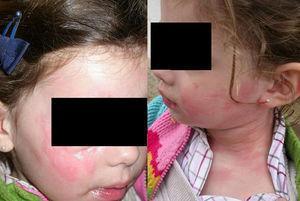 Aspecto clínico de la reacción tras jugar en la arena. Angioedema y habones en la cara, el cuello y el tórax.