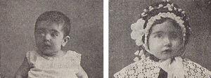 Niña con un sarcoma de ojo, antes y después del tratamiento con radio. Libro de Actas del Primer Congreso Español de Pediatría, p. 315.
