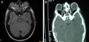 A y B) Imágenes de TAC y RM, en (A) se aprecia un aumento de densidad ósea generalizada, protrusión ocular izquierda, con efecto masa intraorbitario dependiente del techo orbitario y elongación de ambos nervios ópticos; y en (B) se aprecia masas redondeadas intra y extraconales bilaterales de predominio izquierdo, con efecto masa sobre músculo recto superior (encefalocele frontoorbitario izquierdo).