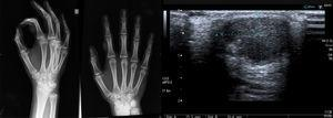 La radiografía simple muestra una lesión bien delimitada localizada en partes blandas, sin afectación ósea. La ecografía cutánea revela una lesión nodular sólida sin presencia de vasos sanguíneos en su interior.