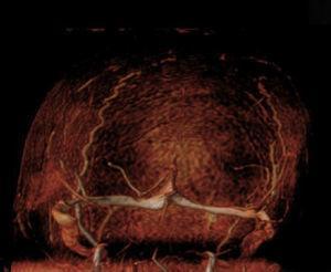 Trombosis venosa cerebral en paciente con leucemia linfoblástica aguda tratada con L-asparaginasa. RM venografía con contraste: ausencia de señal de flujo en el seno sagital superior.