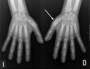 Radiografía de manos. Reacción perióstica en el primer metacarpiano.
