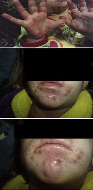 Presentación de lesiones en la enfermedad boca-mano-pie.