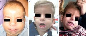 a) Paciente a los 6 meses. Cráneo con morfología en «8», frente amplia, hipertelorismo, proptosis, pliegue palpebral inferior, hipoplasia mediofacial, nariz corta e hipertricosis. b) Paciente a los 3 años. Evolución fenotípica con disminución de la hipertricosis y la retracción mediofacial. c) Paciente a los 4 años y medio. Rasgos menos toscos. Sutura metópica prominente. Disminución del relleno periorbitario y la proptosis. Persistencia de glosoptosis.