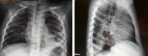 Radiografía de tórax posteroanterior y lateral. Aumento de densidad en lóbulo inferior izquierdo, con pinzamiento del seno costofrénico izquierdo e imagen de atrapamiento aéreo en el interior. No es posible apreciar la continuidad de la cúpula diafragmática izquierda.