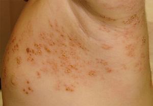 Tras 6 días de tratamiento tópico con fomentos de sulfato de cinc, la mayoría de las lesiones muestran un aspecto costroso residual, con desaparición del eritema y la vesiculación.