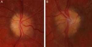Drusas del nervio óptico en ojo izquierdo (A) y ojo derecho (B).