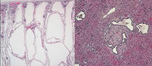 Enfermedad poliquística renal. Dilatación cilíndrica de todos los túbulos colectores, con revestimiento homogéneo por células cuboidales.