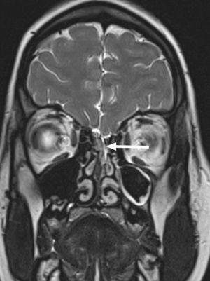 RM coronal 3D CISS de la zona fronto-nasal que muestra sutil defecto óseo y dural a la altura de la lámina cribiforme (flecha blanca) con fístula hacia fosa nasal izquierda.
