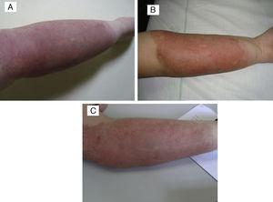 A) Angioma en penacho asociado a malformación A-V. B) Tras 5 meses de tratamiento con propranolol 2mg/kg/día, la lesión permanece estable, sin mejoría. C) Tras 3 sesiones de PDL, parámetros: spot 7mm, 0,5 ms y 9, 10 y 10,5J/cm2, con mejoría clínica y sin cicatrices.