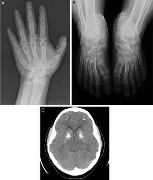 A) Anomalías óseas en la mano. B) Anomalías óseas de los pies. Nótese las alteraciones metacarpo-metatarsianas. C) TAC craneal. Nótese las calcificaciones en los ganglios de la base.