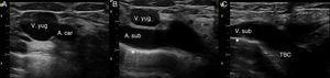 Exploración ecográfica del TBC derecho. A) Plano transversal de la yugular interna y carótida derechas. B) Deslizando el transductor siguiendo la yugular interna se identifica la arteria subclavia. C) Angulando el transductor hacia anterior se obtiene el eje longitudinal de la vena subclavia y su continuación al TBC. * Indica la pleura.