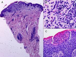 A) Infiltrado inflamatorio dérmico de localización preferente en dermis papilar, de localización perivascular e intersticial (H&E, ×4). B) Detalle del infiltrado inflamatorio en la dermis, constituido por linfocitos y eosinófilos (H&E, ×40). C) Pústula subcórnea constituida por leucocitos neutrófilos polimorfonucleares y eosinófilos, así como exocitosis de eosinófilos en epidermis (H&E, ×40).