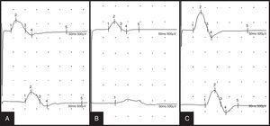 Evolución de la neurografía motora del nervio peroneo profundo, con estímulo distal en tobillo (trazos superiores) y proximal en cabeza de peroné (trazos inferiores): descenso de la amplitud distal y proximal, indicativo de lesión axonal, en el primer estudio (A); bloqueo de la conducción, 10 días después (B); parámetros de amplitud cercanos a la normalidad, 20 días después (C).