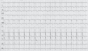 ECG: intervalo QTc 500ms, ondas T negativas en II, III, aVF, V4, V5 y V6.