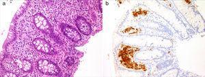 Mucosa colorrectal que muestra un infiltrado de células de hábito histiocitario en la lámina propia (a). Tinción positiva para CD1a en la celularidad descrita (b).