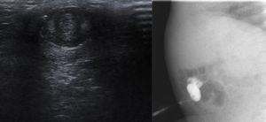 Ecografía y fistulografía: inserción de un catéter a través del orificio de la lesión; se visualiza relleno del trayecto y del asa intestinal.