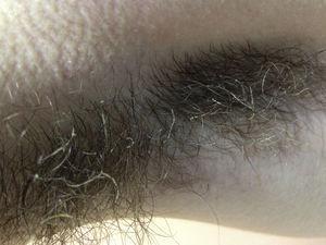 Presencia de cubierta en forma de vaina engrosando el pelo de la axila izquierda.