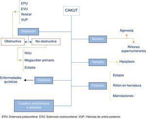 Esquema de las anomalías congénitas nefrourológicas (CAKUT).