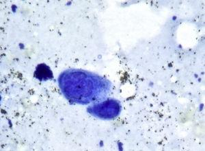 Frotis de Tzank. Se ha teñido el fondo de una de las vesículas con azul de toluidina. Se puede observar una célula gigante multinucleada con núcleos claros amoldados, compatible con infección por el virus varicela-zóster.