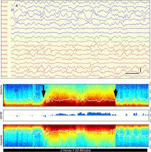 Caso 1: A) EEG en el que se observan frecuentes descargas epileptiformes focales involucrando la totalidad del lóbulo frontal derecho (Fp2, F4, F8) y exceso de ondas lentas en la región temporo-occipital izquierda; filtro bajo: 0,53Hz; filtro alto: 30Hz; filtro de red: 50Hz. Barra vertical: 100μV, barra horizontal: 1s; B) MDE que muestra un cambio brusco en el color (flecha larga) pasando de tonos naranjas, amarillos y verdes en la banda de baja frecuencia (<10Hz) a tonos rojos oscuros, indicativo de la recurrencia de la actividad epiléptica. Tras algo más de una hora, la MDE vuelve a su situación previa coincidiendo con la administración de tiopental (flecha corta). La línea blanca dentro de la MDE indica la frecuencia de borde espectral (SEF) que es el valor de frecuencia en hercios por debajo del cual se sitúa el 95% de las ondas cerebrales. (En versión impresa a blanco y negro, el color rojo oscuro en la banda de baja frecuencia equivale a tonos grises oscuros cercanos al negro).