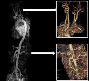 Dilatación y tortuosidad de vasos arteriales con predominio en troncos supraaórticos, tronco celíaco y arteria mesentérica superior en paciente con síndrome de Loeys-Dietz.