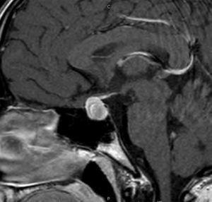 RM diagnóstica: aumento difuso de señal T1.