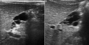 Ecografía abdominal: aspecto ecográfico de la vesícula al diagnóstico (A) y en el último control 6 años después (B).