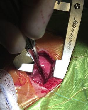Abordaje extrapleural en la cirugía del ductus arterioso persistente. Nótese como el pulmón izquierdo está retraído con la pinza. La pleura visceral se encuentra íntegra y ha sido separada mediante disección roma de la pared torácica. La aorta descendente se puede observar en el fondo de la imagen.