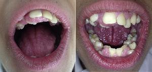 Apiñamiento dental e hipertrofia gingival en el síndrome de Rabson-Mendenhall.