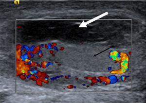 Ecografía escrotal: hidrocele multitabicado de contenido hipoecogénico (flecha grande). Teste de características normales con hiperemia epidídimo testicular en eco-Doppler (flecha pequeña).