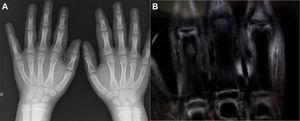 A) Imagen radiográfica de las manos del paciente, donde no se observa afectación ósea. B) Imagen de la RM de las manos, donde se observa aumento de tejidos blandos sin afectación articular.