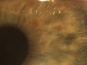 Detalle de los nódulos de Lisch: imagen detallada de los nódulos de Lisch, donde se aprecian dichas lesiones como nódulos sobreelevados, pigmentados, superficiales y bien definidos