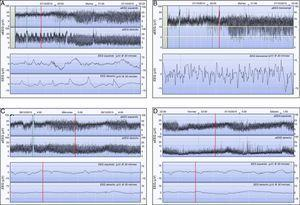 Registro de aEEG a las 9h de vida. A) Registro bicanal de aEEG (Olympic Brainz® Monitor, Natus) donde se aprecia un estado epiléptico de hora y media de duración en el hemisferio derecho. El hemisferio izquierdo no muestra actividad eléctrica epiléptica. B) Registro monocanal correspondiente al mismo momento en el que se aprecian 2 ascensos compatibles con crisis eléctricas (ver trazado crudo). El trazado de base está elevado (10-25μv). C) A las 24h de vida, el trazado de base en el hemisferio izquierdo es continuo, de voltaje normal con ciclos sueño/vigilia, mientras que en el hemisferio derecho donde está el infarto, es continuo de bajo voltaje (4-9μv). D) A los 4 días de vida, el trazado progresivamente se fue hipovoltando en el hemisferio derecho (<5μv). Compárese con el normal voltaje del hemisferio izquierdo.