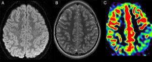 A) Imagen axial ponderada en difusión. B) Imagen axial ponderada en T2. C) Mapa cualitativo de flujo cerebral, con secuencia de perfusión sin contraste, pseudocontinuous arterial spin-labeling (ASL).