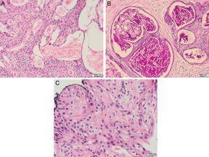 A) Grandes áreas quísticas rodeadas de células escamosas intermedias y células claras (H&E ×200). B) Técnica de Periodic Acid Schiff (PAS), que destaca la naturaleza mucinosa del contenido quístico (PAS ×200). C) Detalle a gran aumento de la celularidad neoplásica. Células escamosas intermedias y células claras, de núcleos monomorfos, con escasa atipia y sin figuras de mitosis (H&E ×400).