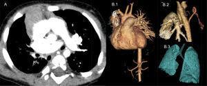 A) TC torácica helicoidal con contraste. Se observa agenesia de la arteria pulmonar derecha e hipoplasia pulmonar derecha. B) TC torácica helicoidal con reconstrucciones 3D. B.1) Detalle de la agenesia de la arteria pulmonar derecha. B.2) Ramas colaterales desde aorta descendente que nutren parénquima pulmonar derecho. B.3) Hipoplasia pulmonar derecha.