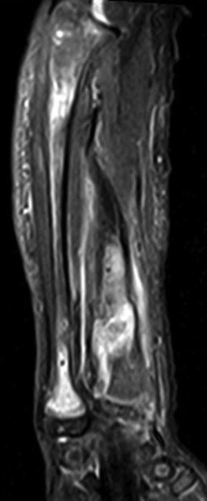 Imagen RM sagital en T2 y STIR del antebrazo, donde se observa hiperintensidad de los infiltrados condrales en la medular ósea del cubito y radio.