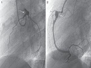 Imágenes de coronariografías. Proyección OAI a 60° del árbol coronario izquierdo (imagen 1), donde se visualiza un aneurisma gigante de TCI distal y ostium de ADA. Proyección OAI a 60° de ACD (imagen 2) con presencia de aneurisma gigante en segmento proximal.