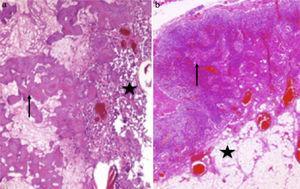 a) La pieza de resección del tumor primario está constituida en un 60% por necrosis tumoral, en su mayoría en forma de osteoide mineralizado y necrosado (flecha), y un 40% por células neoplásicas con producción de matriz osteoide (estrella) (H&E ×100); b) Ganglio linfático con arquitectura conservada. Los senos medulares se encuentran ocupados por histiocitos (flecha), y se aprecia involución de grasa parcial (estrella). No se observa infiltración neoplásica (H&E ×40).