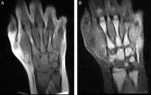 A) Mano derecha, coronal T1, desde radiocubital distal a metacarpofalángicas: hipointensidad de todos los huesos con pequeñas zonas hiperintensas en diáfisis de metacarpianos (2.° y 4.°). Grasa hiperintensa, como corresponde a esta secuencia. B) Mano derecha, coronal STIR, desde radiocubital distal a metacarpofalángicas: hiperintensidad en todos los huesos con pequeñas zonas hipointensas en diáfisis de metacarpianos (2.° y 4.°). Grasa hipointensa, como corresponde a esta secuencia.